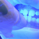 UV Whitening Teeth - VideoHive Item for Sale