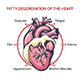 Fatty Degeneration of the Heart - GraphicRiver Item for Sale