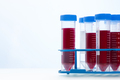 Blood Testing Samples in Laboratory. Covid-19 Blood Test Concept - PhotoDune Item for Sale
