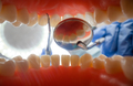 Patient at a dentist appointment in a dental clinic. View from inside the dental jaw. - PhotoDune Item for Sale