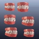 Teeth With Braces - VideoHive Item for Sale