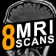 MRI Scan Elements - VideoHive Item for Sale